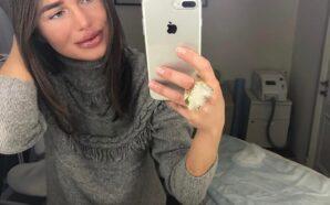 Участница «Фабрики звезд», певица Алекса переборщила с увеличением губ