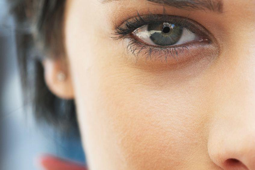 Синяки под глазами: причины появления и способы избавления