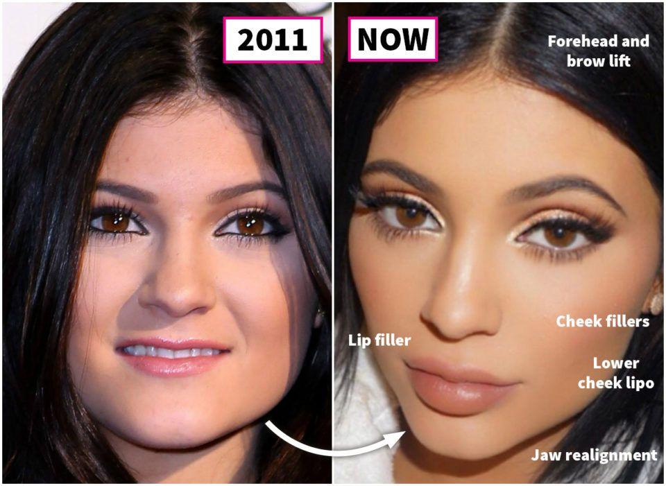 Сестры Кардашьян: до и после пластических операций, картинка, фото, изображение